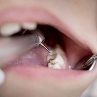 Oral health in Northern Ireland 'stagnating' say dentists
