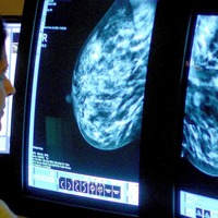 Genetic changes identified which may predict breast cancer relapse