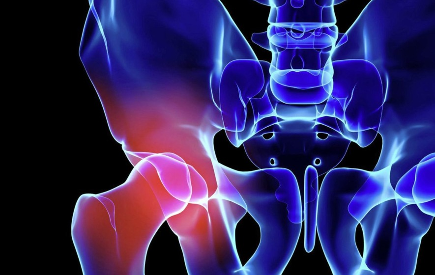 Faster recovery times, new materials – how hip replacement surgery
