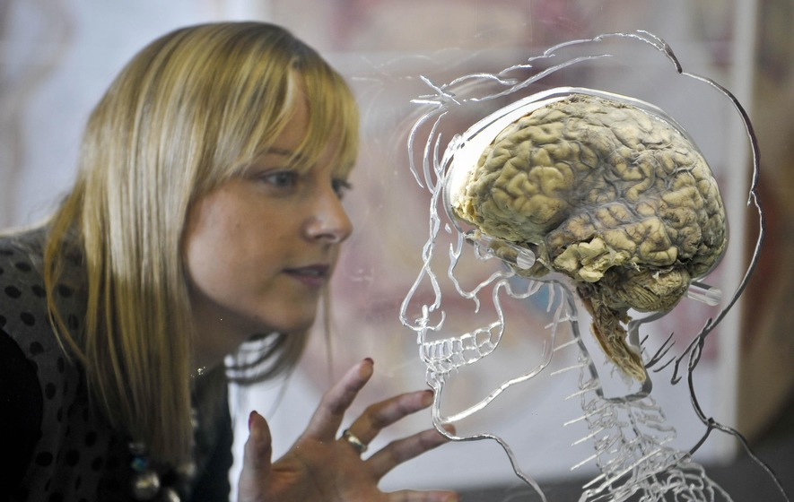 Study Finds Women's Brains Appear Younger Than Men's