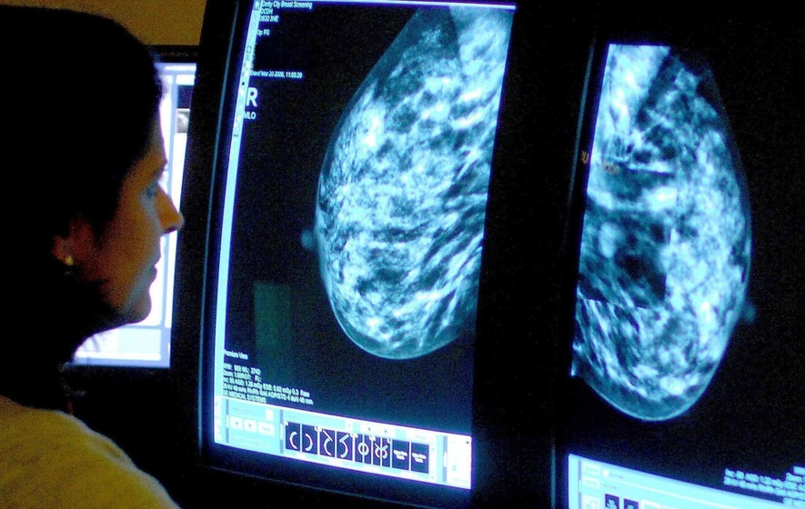 Experts found that early screening led to the detection of more tumours before they had spread