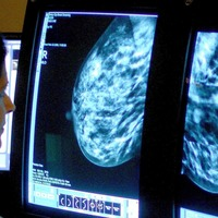 New test could predict breast cancer recurrence