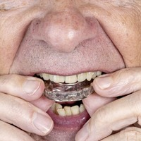 Ask The Dentist: Bite guards can aid teeth grinding but don't buy one from web