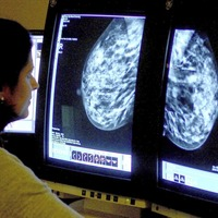 Breast cancer assessments to be offered in fewer Northern Ireland hospitals under plans