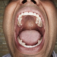 Teeth-whitening strips may damage tooth dentin, study shows