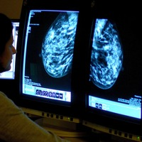 Genetic test can help doctors decide on breast cancer treatment, study suggests