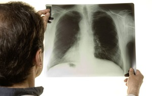 At risk Methody pupils to be screened for tuberculosis