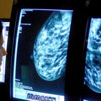 Treatment combo gives young breast cancer patients 'new hope'