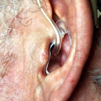 Wearing hearing aid may help protect brain in later life, study suggests