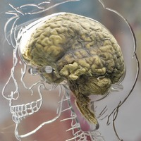 £3m fund for virtual brain bank to help MS and Parkinson's research