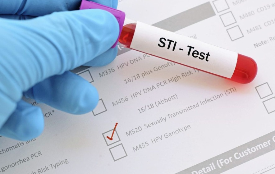 Why Choose a Chlamydia Test?