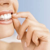 Ask the Dentist: Clear braces could pave the way to a brighter smile