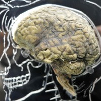 Minute-to-minute brain activity fluctuations 'impact risk-taking'