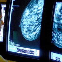 Menopausal hormone therapy linked to greater breast cancer risk decade after use