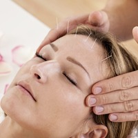 The GP's View: Acupuncture can prevent migraines as well as easing pain