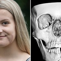 Teenager's face rebuilt after horror horse accident
