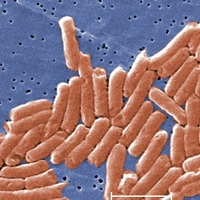 Salmonella research 'could help in development of new treatments'