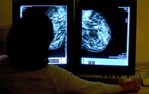 Scientists identify potential risk factors for aggressive form of breast cancer