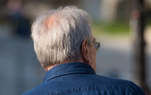 'New evidence' shows how acute stress can lead to grey hair
