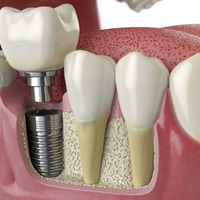 Ask the dentist: Think carefully before getting major dental work done abroad