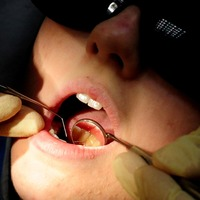 Scientists 'discover how overexposure to fluoride causes tooth enamel defects'