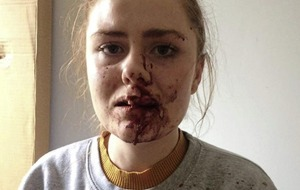 Derry woman who challenged occupants of car posts pictures of injuries she sustained following assault