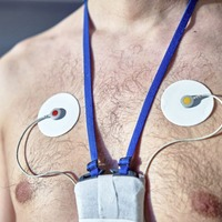 Ask the GP: You may need a Holter monitor to find out why your is heart racing