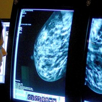 Growth hormone could play a role in breast cancer development – study