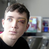 Mother of west Belfast teenager (18) could 'easily have been burying' son after unprovoked attack