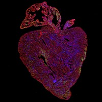 Cancer-causing gene may help treat heart disease, scientists believe