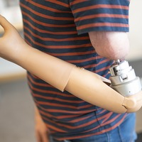 Self-contained bionic arm controlled by mind 'could be available in two years'