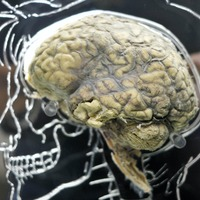 Schizophrenia drug 'could help treat brain and spinal cord injury patients'