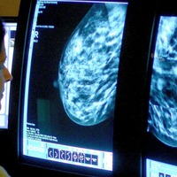 Non-invasive breast cancer risk revealed