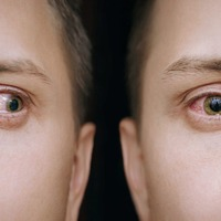 Covid explainer: Why conjunctivitis, red eyes, is one of the coronavirus symptoms