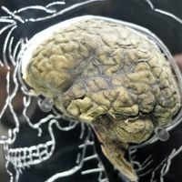 Scientists identify genes that drive aggressive brain cancer