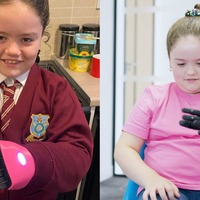 Eight-year-old girl born with one hand receives 'life-changing' bionic arm