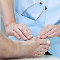 Ask the GP: I think you've been given an unduly pessimistic prognosis on bunion op