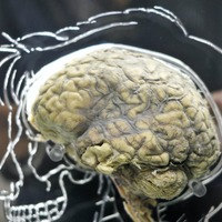 Happy endings trip up the brain's decision-making, study suggests