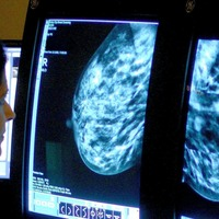 Taking statins 'may protect heart from damage during breast cancer treatment'