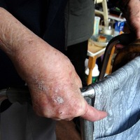 Prescription drug linked with reduced dementia risk in arthritis patients