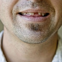 Ask The Dentist: Scientists will soon be able to regenerate teeth in humans