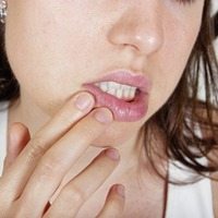 New drug to tackle virus that causes cold sores