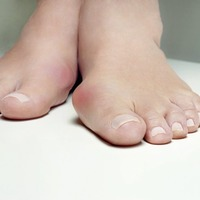 Ask the GP: Shoe inserts will get your bunions on the right footing