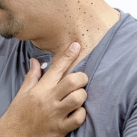 Ask the GP: Treating warts that strike in middle age