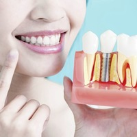 Ask the dentist: Look after your dental implants and they will look after you