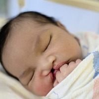 Ask the expert: My unborn baby's got a cleft lip – why does this happen and what is the treatment?