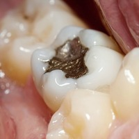 Ask the dentist: Filling the gap safer than ever as amalgam fillings phased out