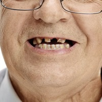 Ask the dentist: Link between dementia and poor dental health
