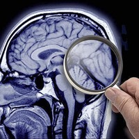 Neurology services 'close to breaking point', report warns