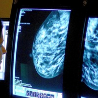 New trial could offer hope to those with incurable breast cancer